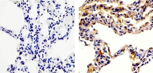 CCL5 (RANTES) Antibody in Immunohistochemistry (Paraffin) (IHC (P))