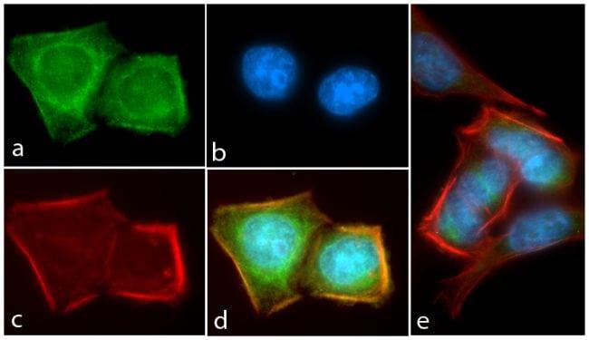 Phospho-AKT1 (Thr308) Antibody in Immunocytochemistry (ICC/IF)