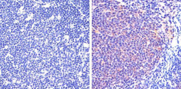 Phospho-STAT5 alpha (Tyr694) Antibody in Immunohistochemistry (Paraffin) (IHC (P))