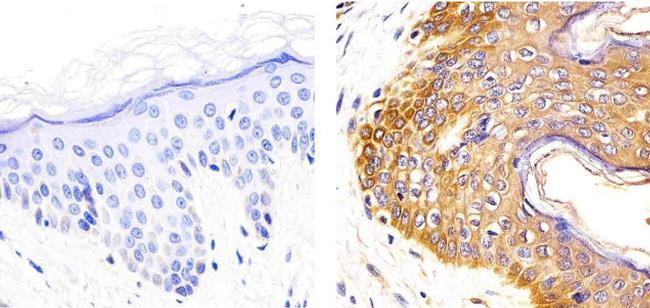 IL-2 Antibody in Immunohistochemistry (Paraffin) (IHC (P))