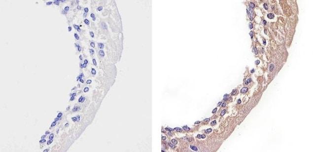 STAT2 Antibody in Immunohistochemistry (Paraffin) (IHC (P))
