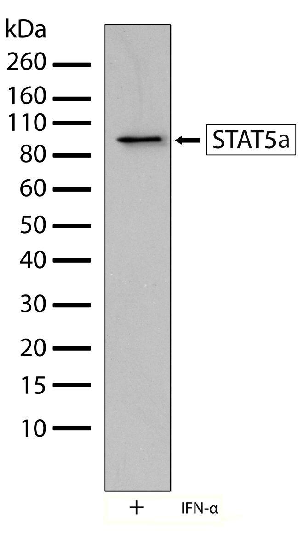 STAT5 alpha Antibody in Western Blot (WB)