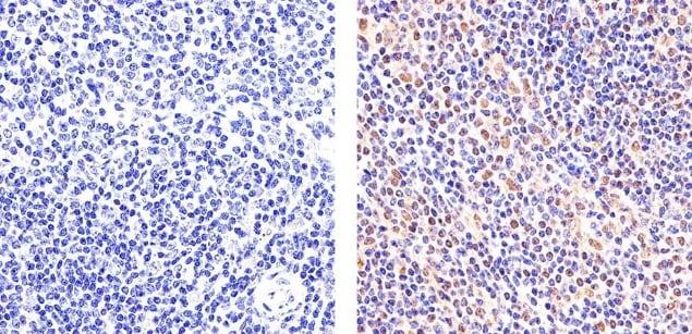 STAT6 Antibody in Immunohistochemistry (Paraffin) (IHC (P))