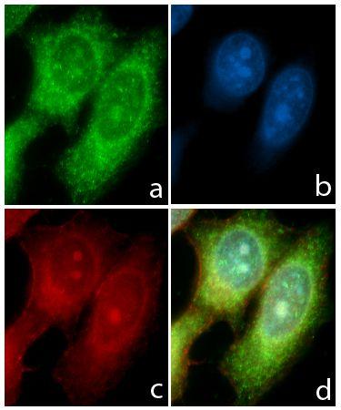 STAT6 Antibody in Immunofluorescence (IF)