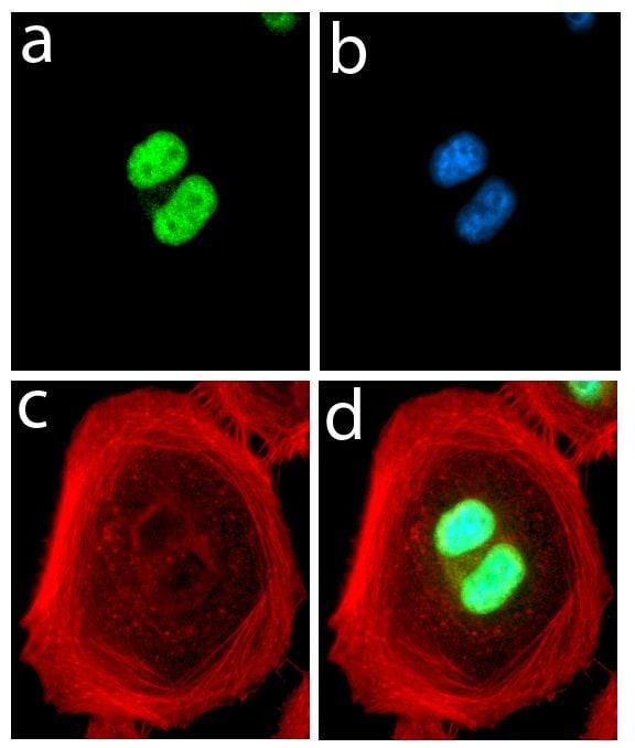 FABP4 Antibody in Immunofluorescence (IF)