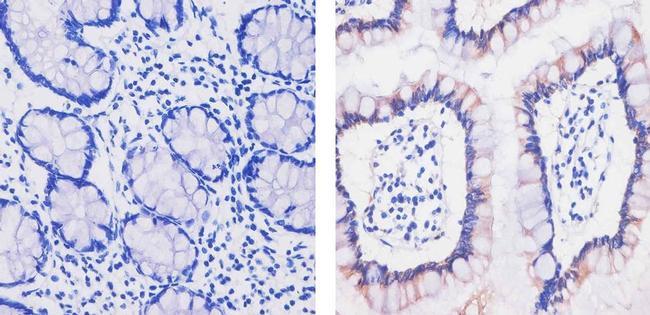 MCP-2 Antibody in Immunohistochemistry (Paraffin) (IHC (P))