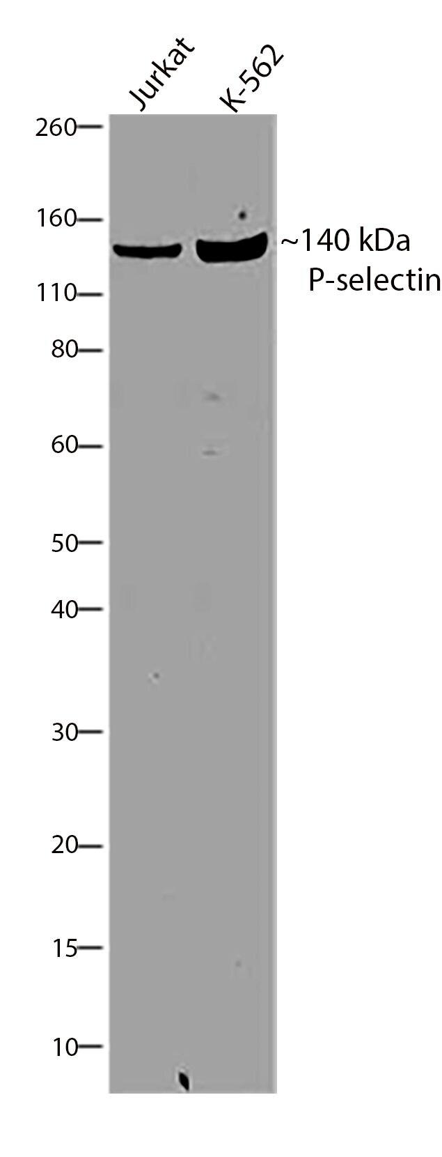 P-Selectin Antibody in Western Blot (WB)