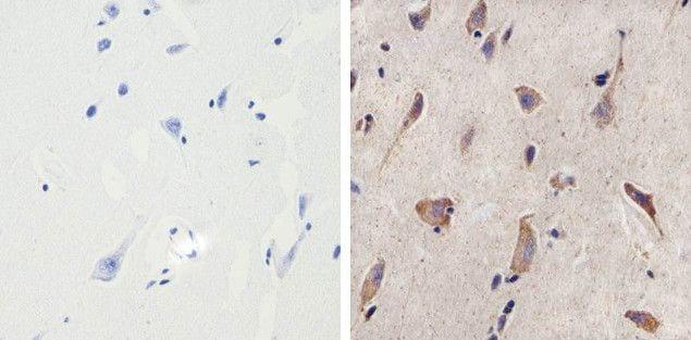 MMP16 Antibody in Immunohistochemistry (Paraffin) (IHC (P))