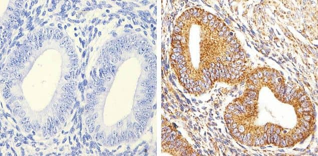 Alpha-Smooth Muscle Actin Antibody in Immunohistochemistry (Paraffin) (IHC (P))