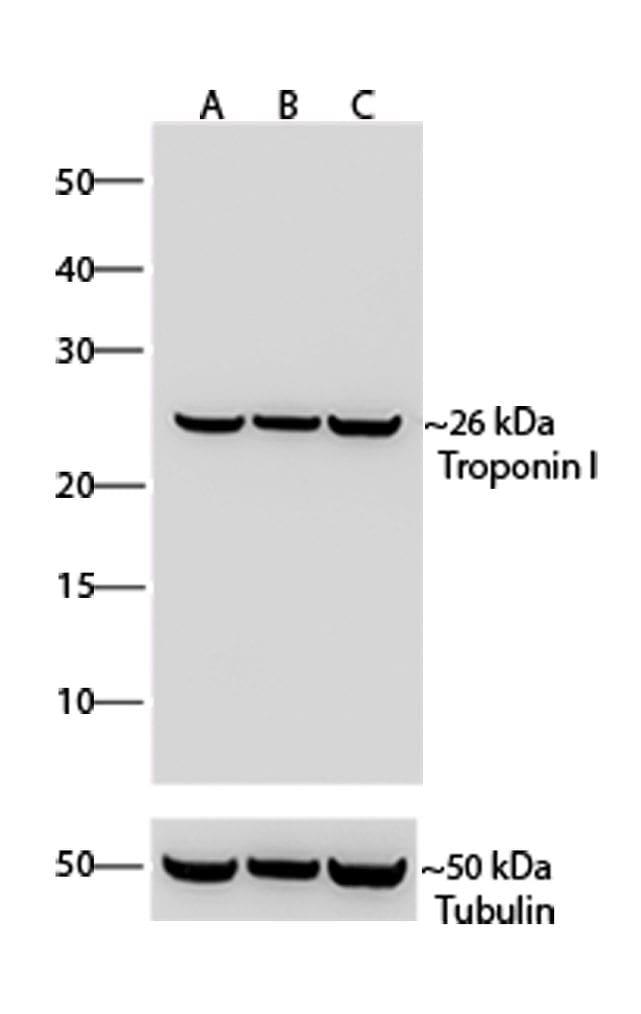 Troponin I Antibody in Western Blot (WB)