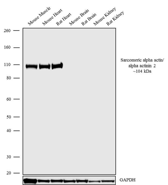 alpha Actinin 2 Antibody