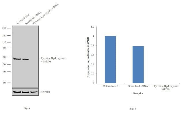 Tyrosine Hydroxylase Antibody in KnockDown