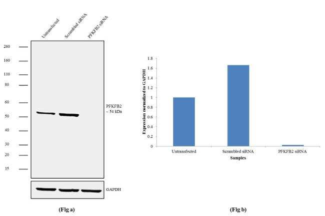 PFKFB2 Antibody in Western Blot (WB)