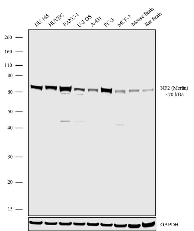 NF2 Antibody in Western Blot (WB)