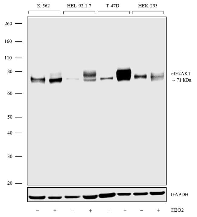 HRI Antibody in Cell treatment