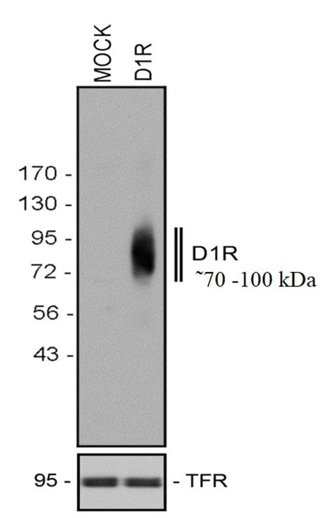 DRD1 Antibody in Western Blot (WB)