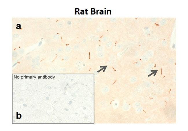 MCHR1 Antibody in Immunohistochemistry (IHC)
