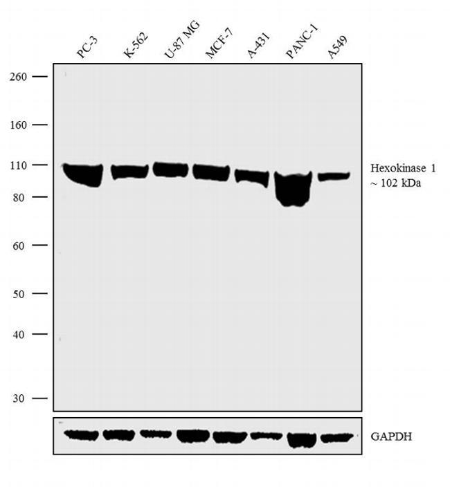 HK1 Antibody in Western Blot (WB)