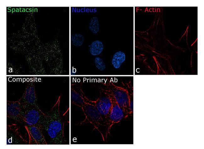 SPG11 Antibody in Immunocytochemistry (ICC/IF)