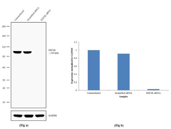 EEF2K Antibody in Knockdown