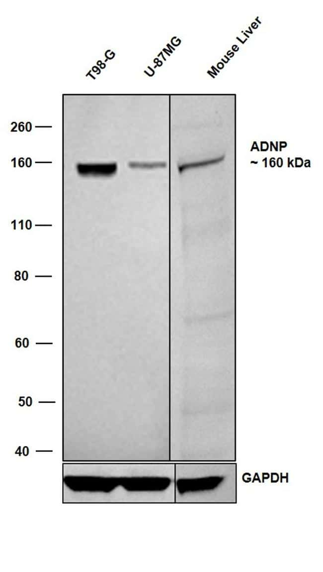 ADNP Antibody in Western Blot (WB)