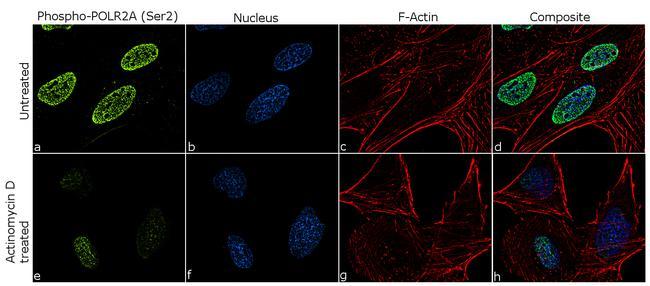 Phospho-POLR2A (Ser2) Antibody in Immunofluorescence (IF)