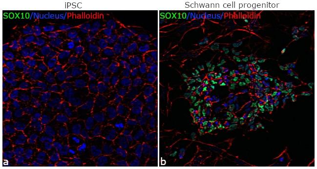 SOX10 Antibody in Immunofluorescence (IF)