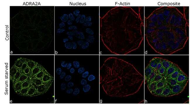 Alpha-2a Adrenergic Receptor Antibody in Immunocytochemistry (ICC/IF)