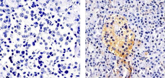 CXCL5 Antibody in Immunohistochemistry (Paraffin) (IHC (P))