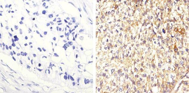 STAT3 Antibody in Immunohistochemistry (Paraffin) (IHC (P))