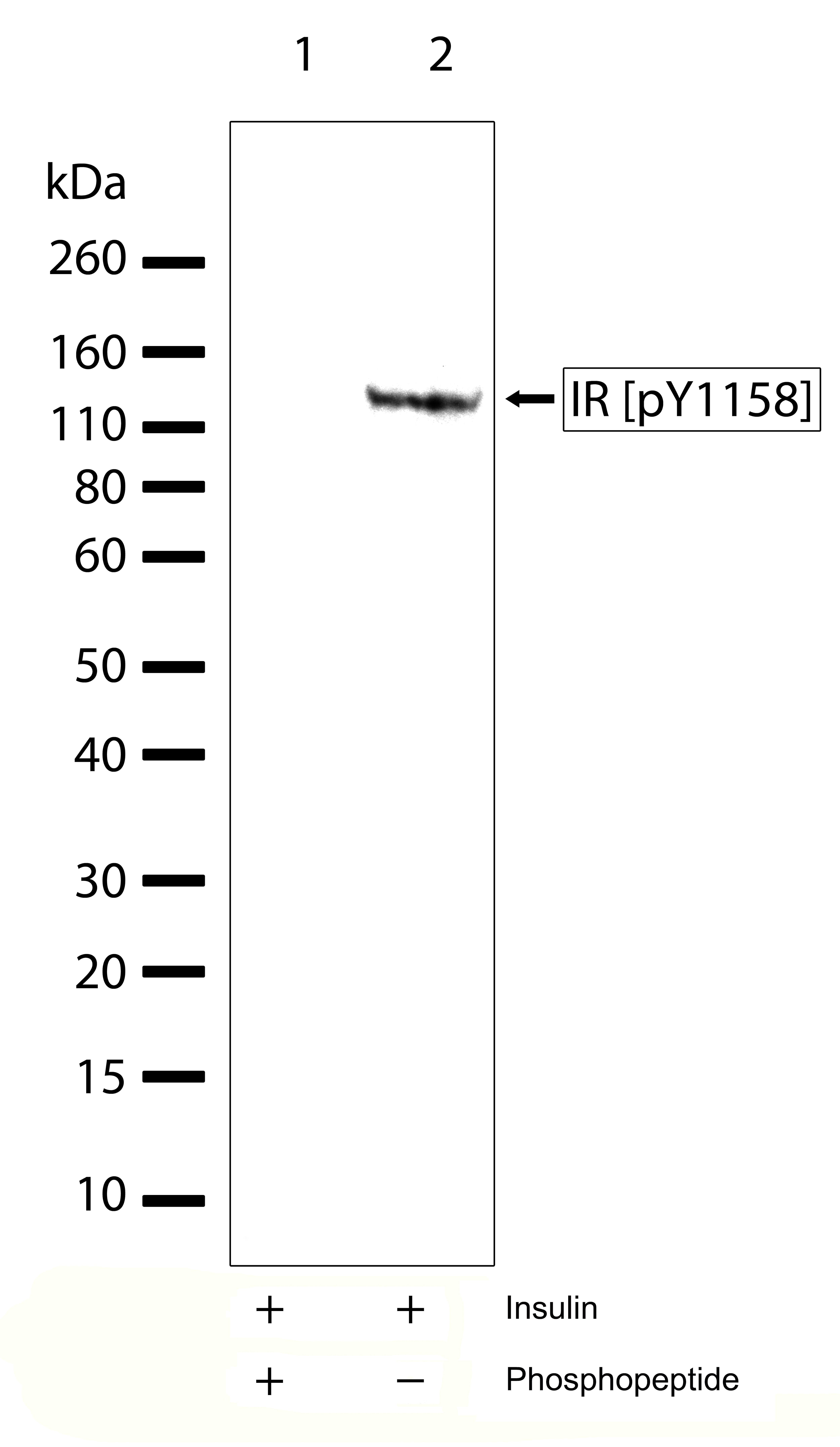 Phospho-INSR (Tyr1158) Antibody in Western Blot (WB)