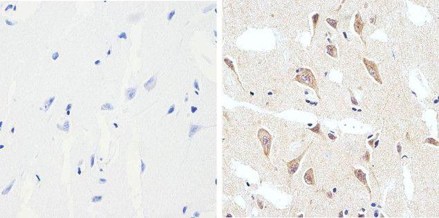 Phospho-Tau (Ser199) Antibody in Immunohistochemistry (Paraffin) (IHC (P))