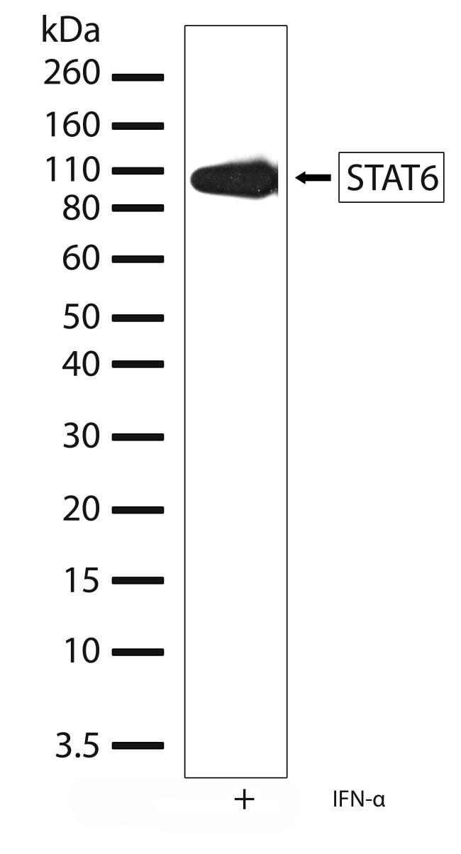 STAT6 Antibody in Western Blot (WB)