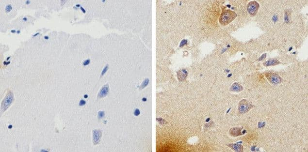 beta Amyloid Antibody in Immunohistochemistry (Paraffin) (IHC (P))