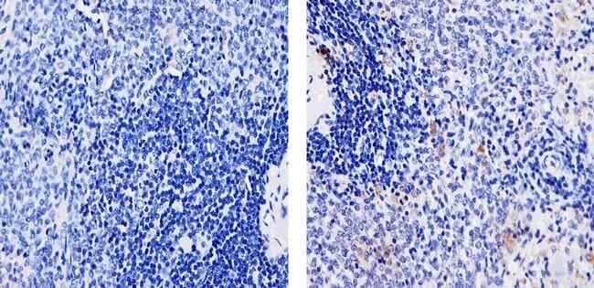 TLR4 Antibody in Immunohistochemistry (Paraffin) (IHC (P))