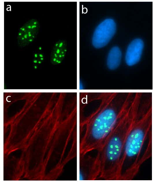 Metadherin Antibody in Immunofluorescence (IF)