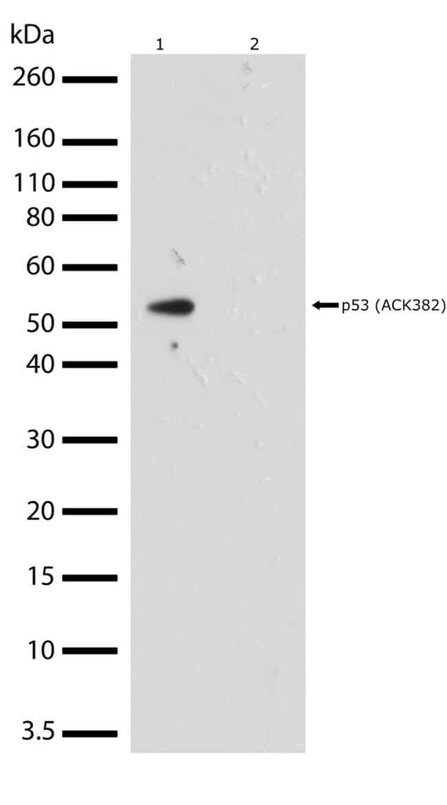 Acetyl-p53 (Lys382) Antibody in Cell treatment