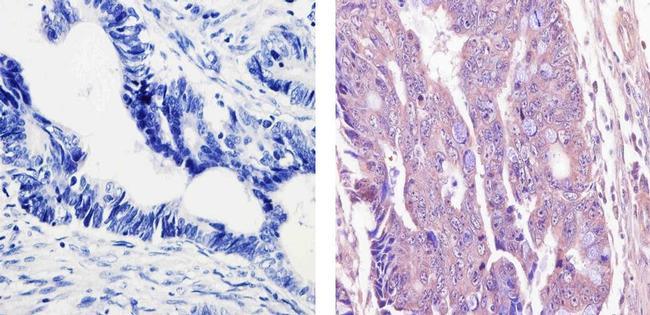 Acetyl-p53 (Lys382) Antibody in Immunohistochemistry (Paraffin) (IHC (P))