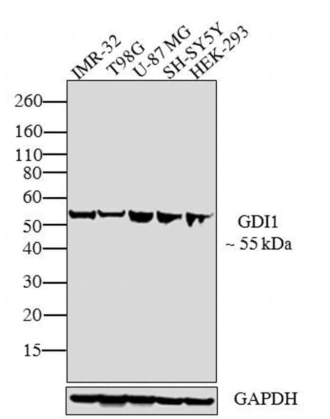 GDI1 Antibody in Western Blot (WB)