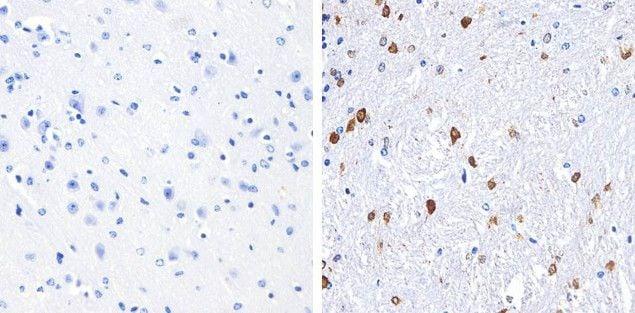 S100B Antibody in Immunohistochemistry (Paraffin) (IHC (P))