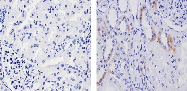 Phospho-TSC2 (Ser939) Antibody in Immunohistochemistry (Paraffin) (IHC (P))