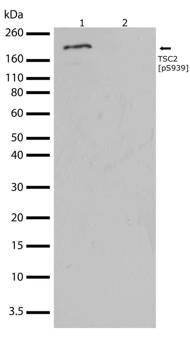 Phospho-TSC2 (Ser939) Antibody in Western Blot (WB)