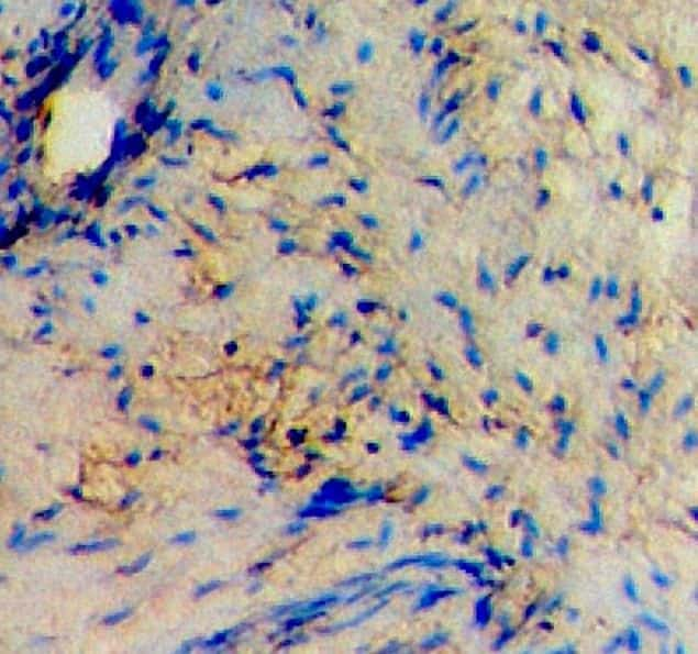 Alpha-Smooth Muscle Actin Antibody in Immunohistochemistry (IHC)