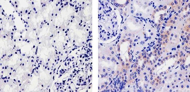 PSA Antibody in Immunohistochemistry (Paraffin) (IHC (P))