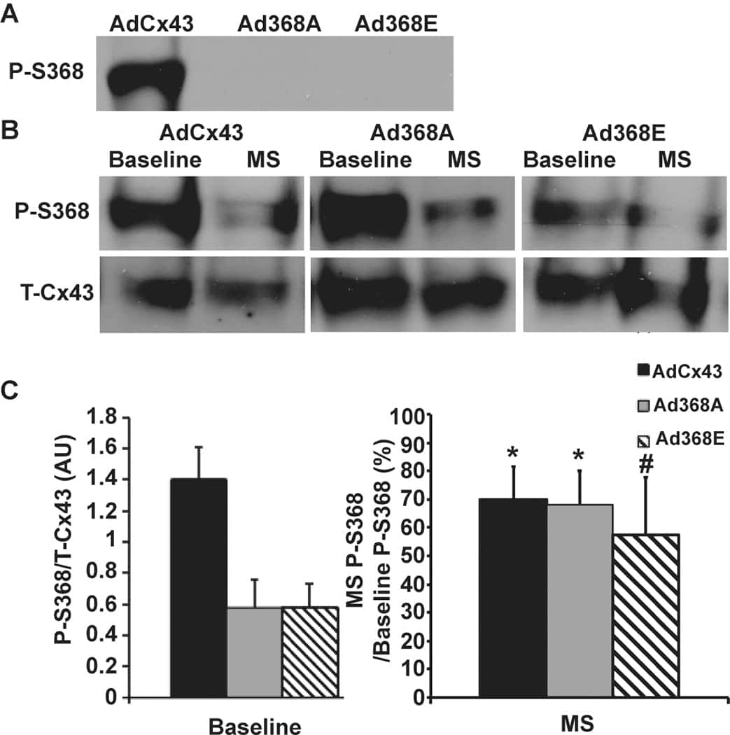 Connexin 43 Antibody Prokaryotic Cells Ib Biology Ms Elise