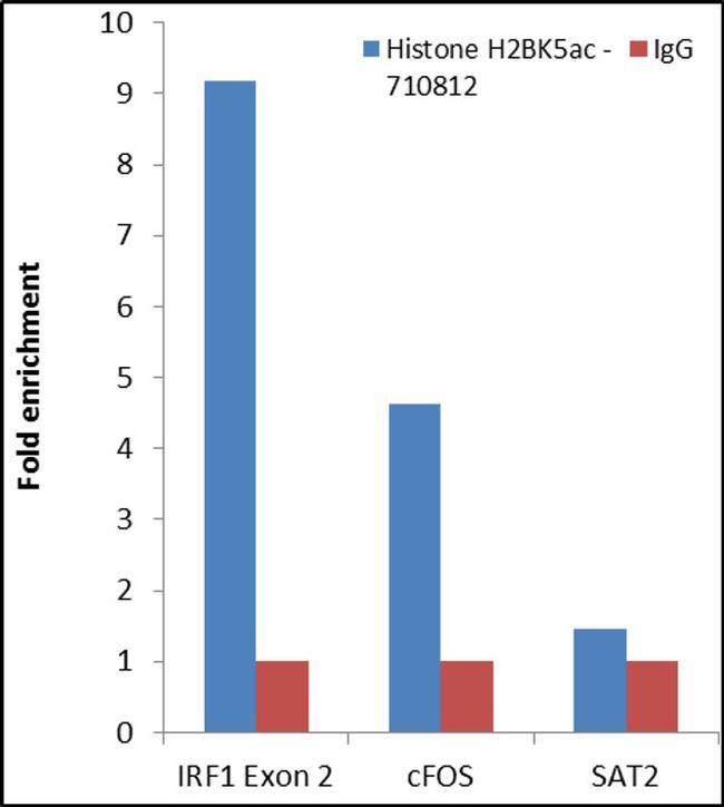 H2BK5ac Antibody in ChIP assay (ChIP)