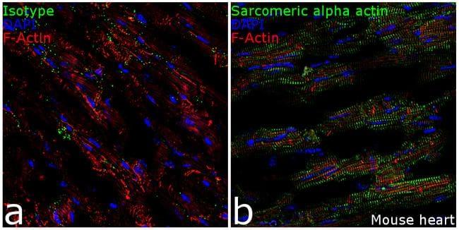 alpha Actinin 2 Antibody in Immunohistochemistry (Frozen) (IHC (F))