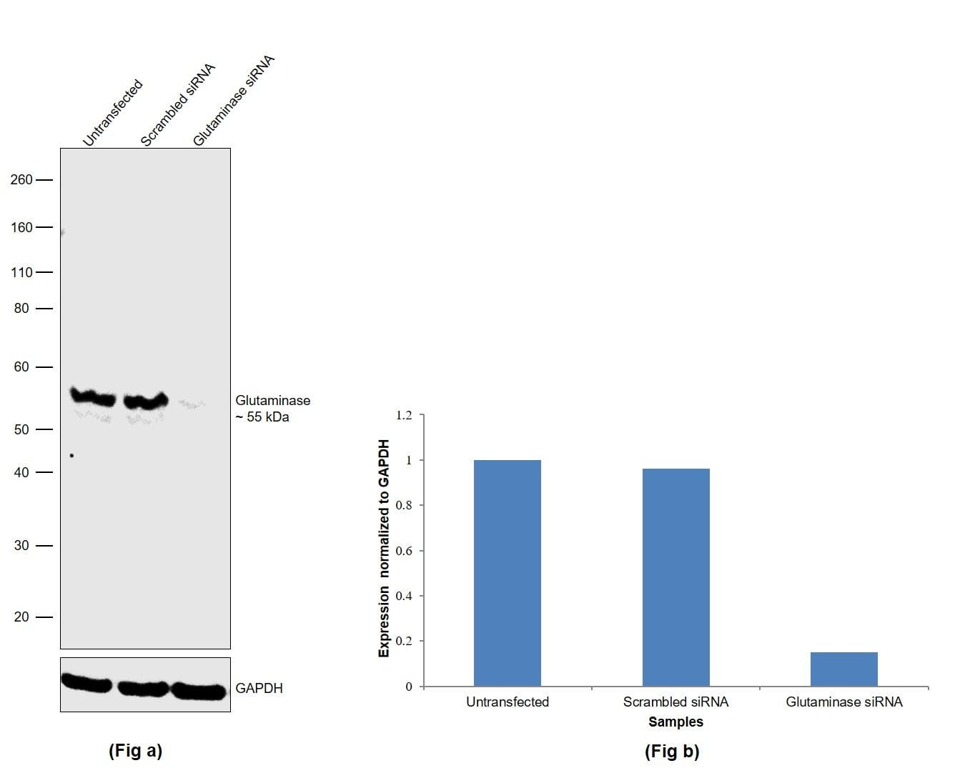 Glutaminase Antibody in Western Blot (WB)
