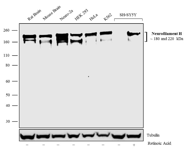 NF-H Antibody in Cell treatment