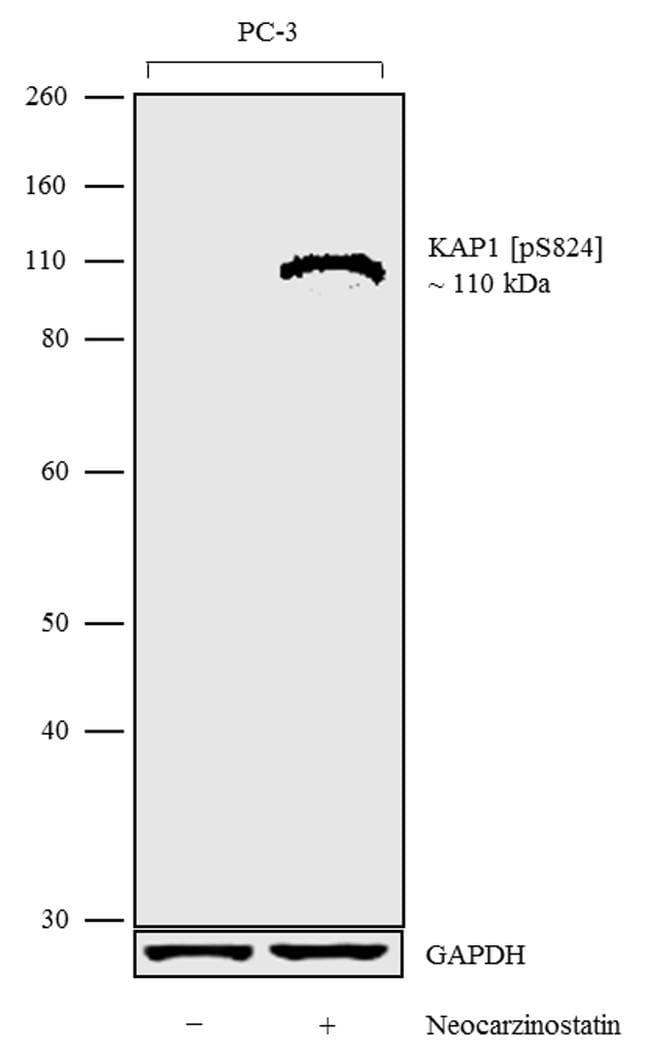 Phospho-TRIM28 (Ser824) Antibody in Western Blot (WB)